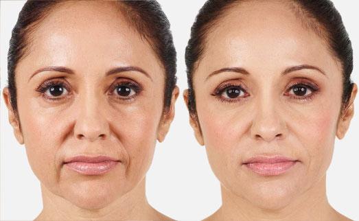 Fillers Facial Services Burlington Nina L Allure Nina L Allure